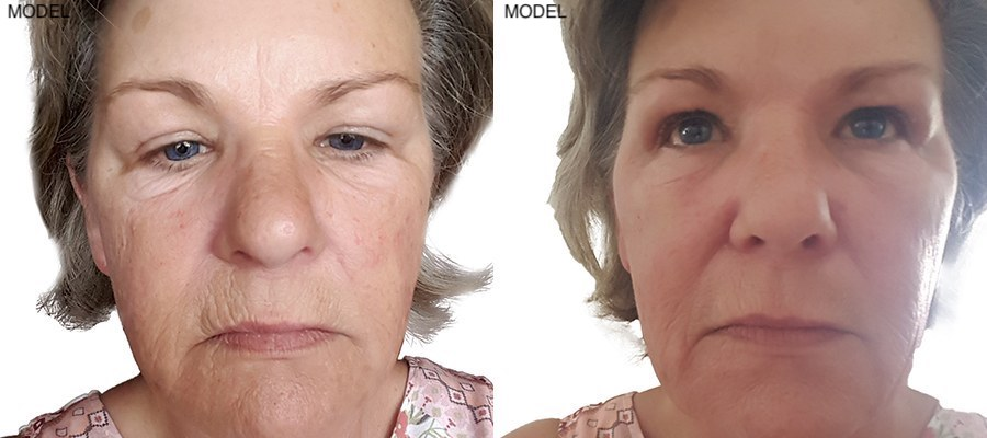 Patient 8 Juvederm Voluma Before and After Front View